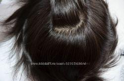 Система из натуральных волос. Альтернатива парика